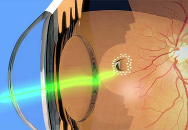 Laser αμφιβληστροειδούς (διαβητική αμφιβληστροειδοπαθεια, αποφράξεις αγγείων, ρωγμή αμφιβληστροειδούς)