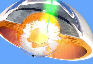 Yag Laser (θόλωση περιφακιου, περιφερική ιριδοτομή)
