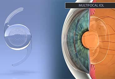Χειρουργική καταρράκτη με τοποθέτηση τορικών ή πολυεστιακών ενδοφακών