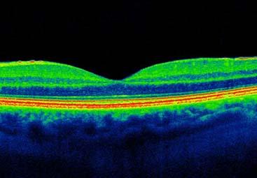 OCT οπτική τομογραφία συνοχής πρόσθιου και οπίσθιου ημιμορίου
