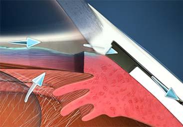 Χειρουργική γλαυκώματος τραμπεκουλεκτομή, Deep Sclerectomy