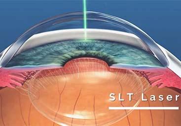 SLT laser για θεραπεία γλαυκώματος